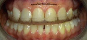 Tratamiento Odontológico Plano Orgánico